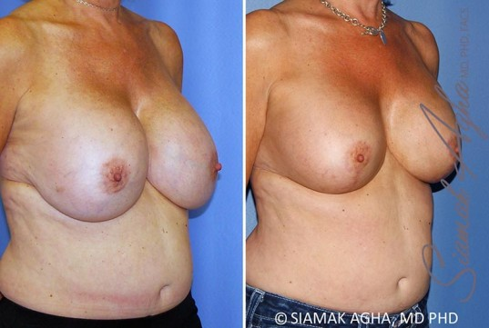 orange-county-breast-lift-with-augmentation-patient-13-front-right