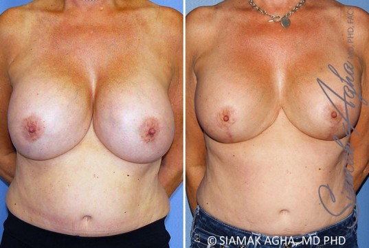 orange-county-breast-lift-with-augmentation-patient-13-front