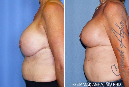 orange-county-breast-lift-with-augmentation-patient-13-left