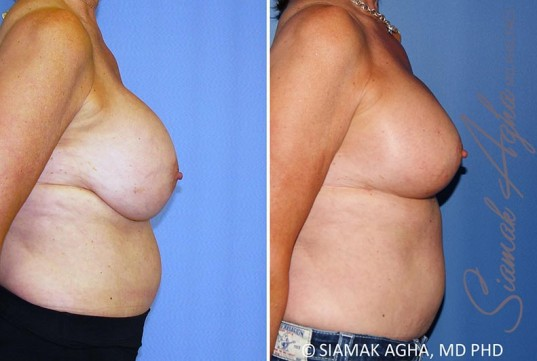 orange-county-breast-lift-with-augmentation-patient-13-right