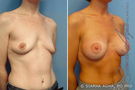 orange-county-breast-lift-with-augmentation-patient-2-front-right