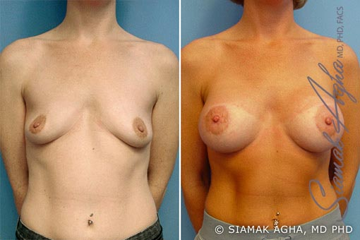 orange-county-breast-lift-with-augmentation-patient-2-front