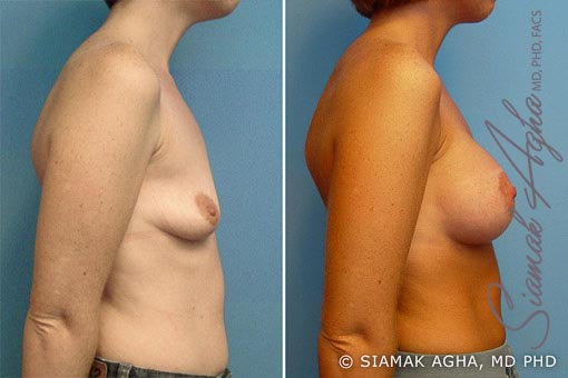 orange-county-breast-lift-with-augmentation-patient-2-right