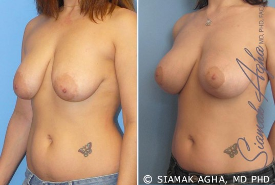 orange-county-breast-lift-with-augmentation-patient-3-front-left