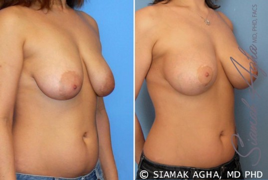 orange-county-breast-lift-with-augmentation-patient-3-front-right