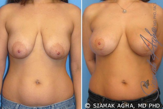 orange-county-breast-lift-with-augmentation-patient-3-front