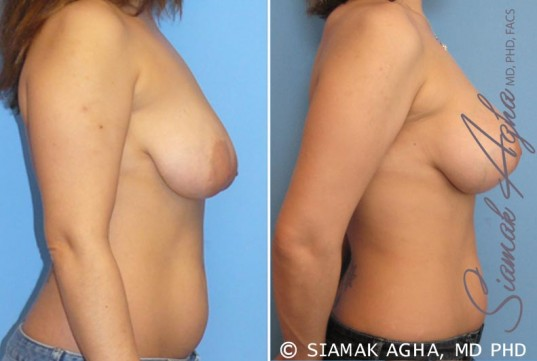 orange-county-breast-lift-with-augmentation-patient-3-right