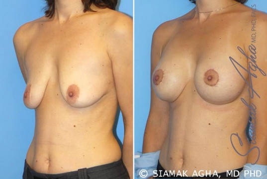 orange-county-breast-lift-with-augmentation-patient-4-front-left