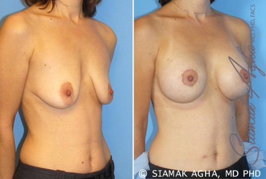 orange-county-breast-lift-with-augmentation-patient-4-front-right