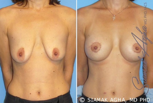 orange-county-breast-lift-with-augmentation-patient-4-front