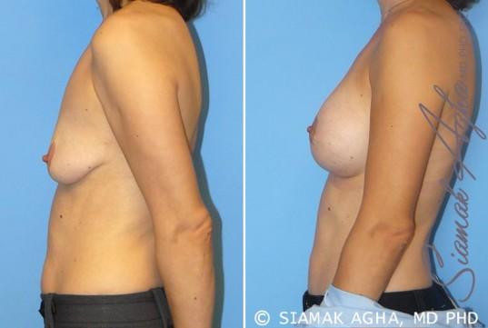 orange-county-breast-lift-with-augmentation-patient-4-left