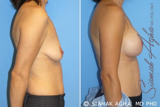 orange-county-breast-lift-with-augmentation-patient-4-right