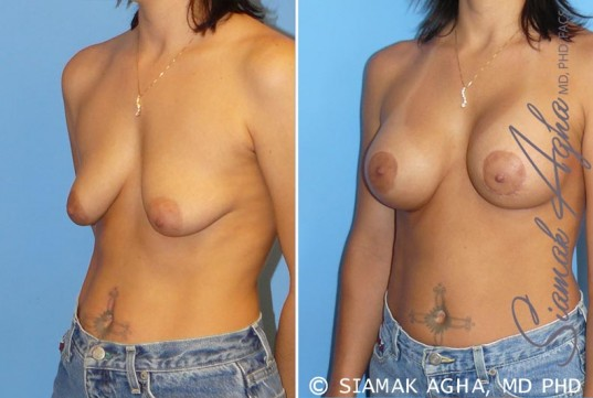 orange-county-breast-lift-with-augmentation-patient-5-front-left