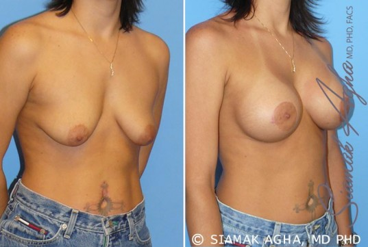 orange-county-breast-lift-with-augmentation-patient-5-front-right