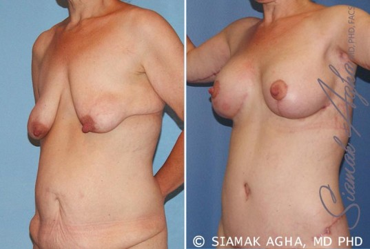orange-county-breast-lift-with-augmentation-patient-6-front-left