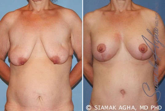 orange-county-breast-lift-with-augmentation-patient-6-front