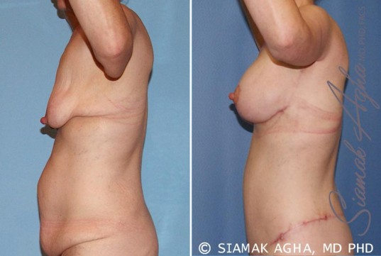 orange-county-breast-lift-with-augmentation-patient-6-left