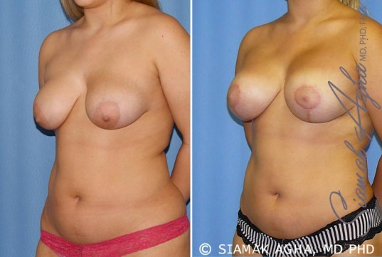 orange-county-breast-lift-with-augmentation-patient-7-front-left