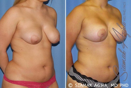 orange-county-breast-lift-with-augmentation-patient-7-front-right