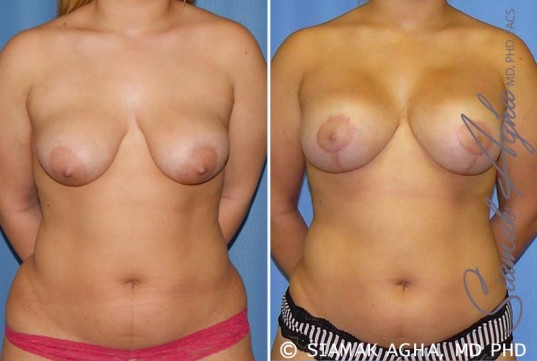 orange-county-breast-lift-with-augmentation-patient-7-front