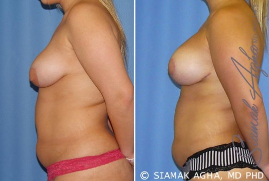 orange-county-breast-lift-with-augmentation-patient-7-left