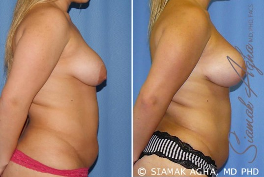 orange-county-breast-lift-with-augmentation-patient-7-right