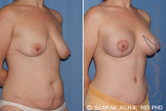 orange-county-breast-lift-with-augmentation-patient-8-front-right