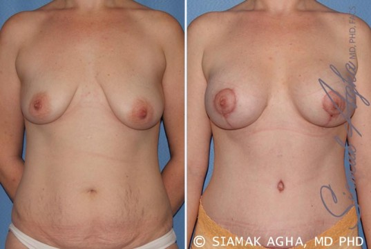 orange-county-breast-lift-with-augmentation-patient-8-front