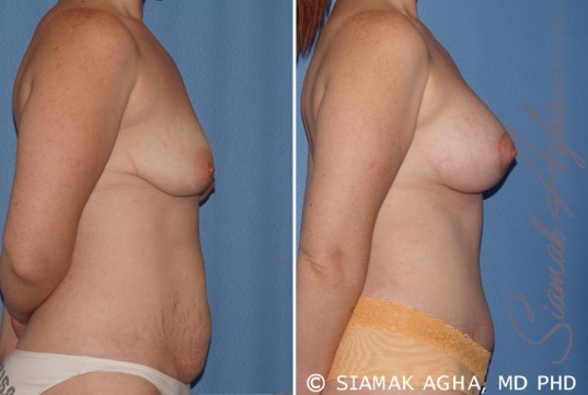 orange-county-breast-lift-with-augmentation-patient-8-right
