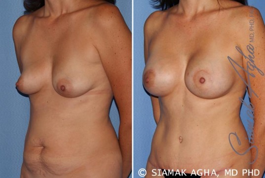 orange-county-breast-lift-with-augmentation-patient-9-front-left