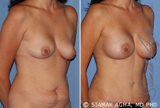 orange-county-breast-lift-with-augmentation-patient-9-front-right