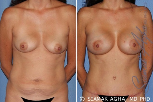 orange-county-breast-lift-with-augmentation-patient-9-front