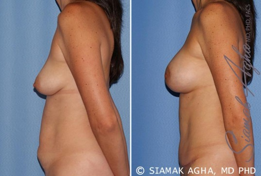 orange-county-breast-lift-with-augmentation-patient-9-left
