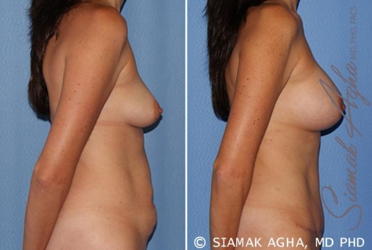 orange-county-breast-lift-with-augmentation-patient-9-right
