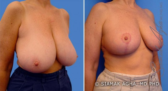 orange-county-breast-reduction-patient-1-front-right
