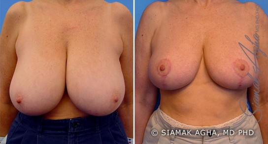 orange-county-breast-reduction-patient-1-front