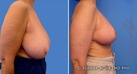orange-county-breast-reduction-patient-1-right