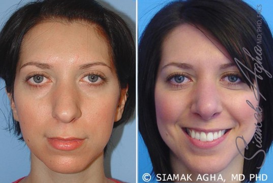 orange-county-chin-augmentation-patient-1-front