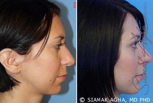 orange-county-chin-augmentation-patient-1-right