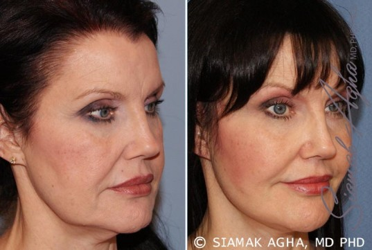 orange-county-facelift-patient-10-front-right