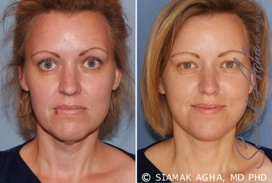 orange-county-facelift-patient-2-front