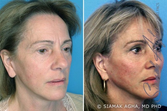 orange-county-facelift-patient-3-front-right