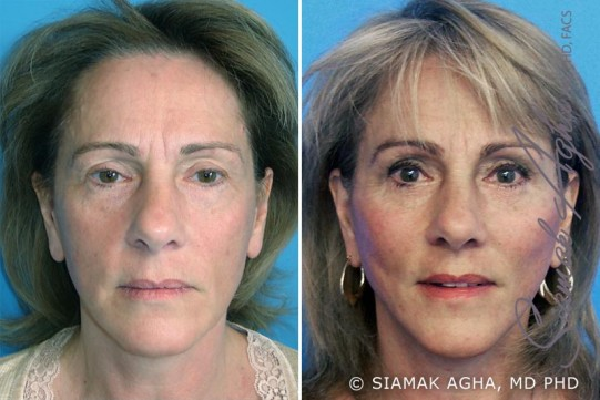 orange-county-facelift-patient-3-front