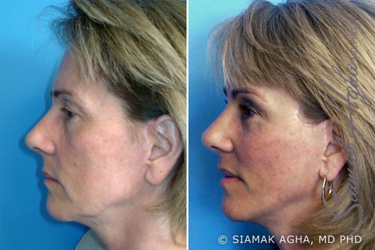 orange-county-facelift-patient-3-left