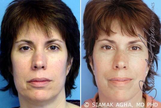 orange-county-facelift-patient-5-front