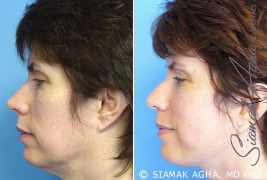 orange-county-facelift-patient-5-left