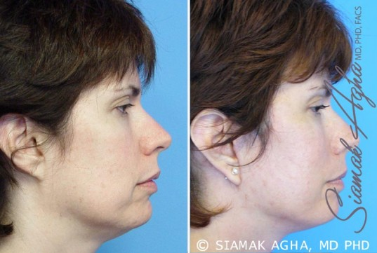 orange-county-facelift-patient-5-right