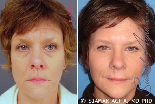 orange-county-facelift-patient-6-front