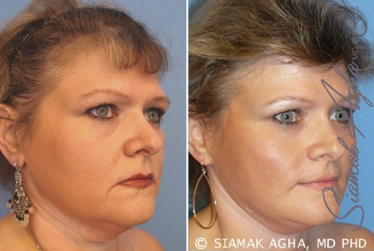 orange-county-facelift-patient-8-front-right