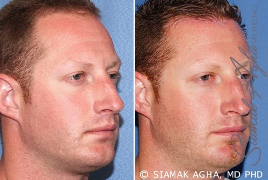 orange-county-forehead-reduction-patient-2-front-right (1)